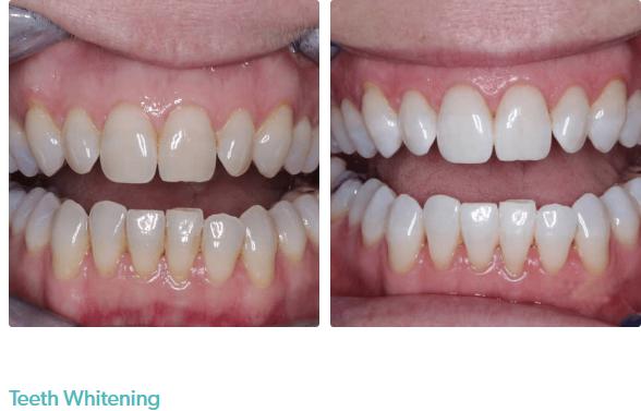 Perfect Smile Dental – Acton