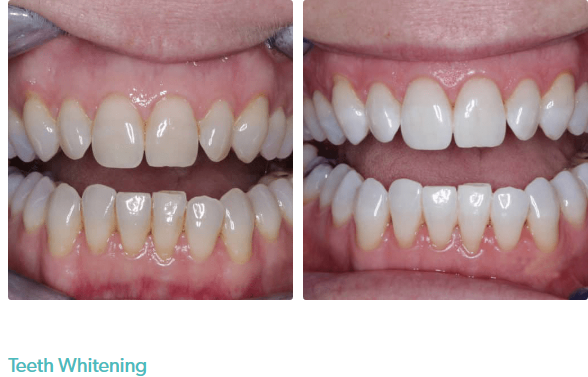 Perfect Smile Dental – Earlsfield
